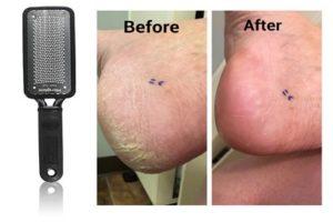 Microplane Colossal Pedicure Rasp   Best foot cream